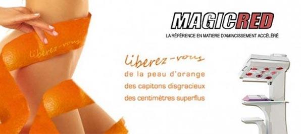 Cure minceur pour femme et homme, femme nue entourée d'une peau d'orange avec appareil pour perdre du poids